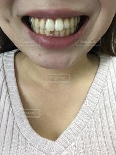 歯並びの写真・画像素材[1874732]