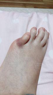 足のアザの写真・画像素材[1162676]