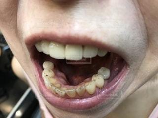 口を開いている女のアップの写真・画像素材[1845660]