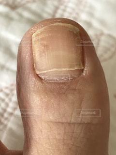 足の親指の爪、健康的にどうなのかな?の写真・画像素材[2325313]