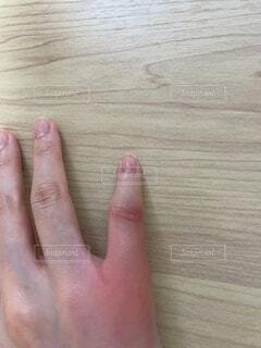 蚊に刺され、小指の腫れの写真・画像素材[4639188]