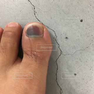 怪我した足の指の写真・画像素材[1275038]
