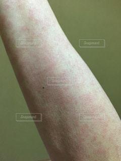 サーモンピンク色皮疹の写真・画像素材[1301608]