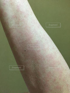 薬疹の写真・画像素材[1305962]