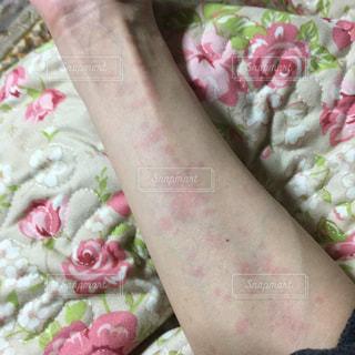 薬疹の写真・画像素材[1305963]