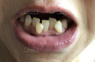 歯並び悪いの写真・画像素材[1306990]