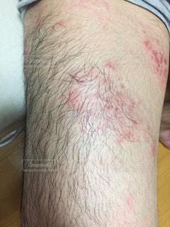 帯状疱疹の写真・画像素材[2153788]