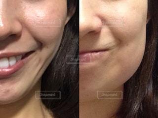 親知らずの抜歯で腫れた顔の写真・画像素材[1594448]