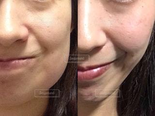 親知らずの抜歯で腫れた顔の写真・画像素材[1594450]