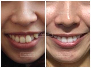 歯列矯正のビフォアフターの写真・画像素材[1596406]