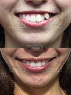 歯列矯正のビフォアアフターの写真・画像素材[1621295]