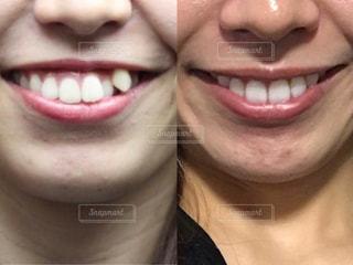 歯列矯正のビフォーアフターの写真・画像素材[1621296]
