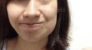 親不知抜歯後の腫れの写真・画像素材[1648929]