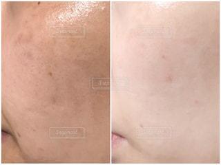 肌質改善の写真・画像素材[1795125]