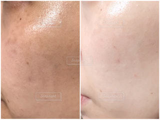 肌質改善の写真・画像素材[1795126]