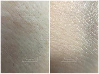 肌質ビフォーアフターの写真・画像素材[2077917]
