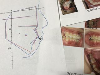 歯科矯正の写真・画像素材[2086897]