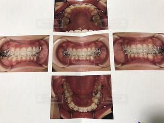 歯列矯正後の歯並びの写真・画像素材[2086898]