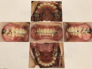 歯列矯正途中の歯並びの写真・画像素材[2086899]