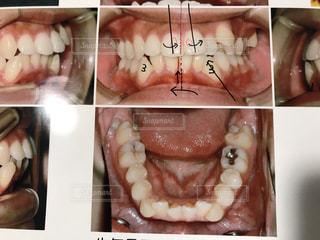 歯列矯正前の歯並びの写真・画像素材[2086900]