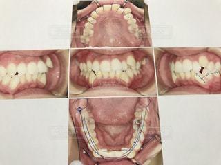 歯列矯正前の歯並びの写真・画像素材[2086901]