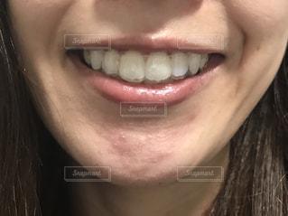 マウスピースを装着した歯の写真・画像素材[2113978]
