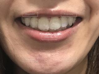 マウスピースを装着した歯の写真・画像素材[2113979]