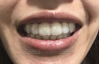マウスピースを装着した歯の写真・画像素材[2113980]