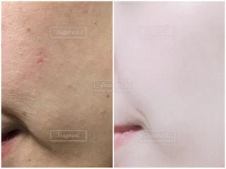 肌質改善の写真・画像素材[2151033]