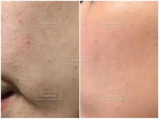 肌質改善の写真・画像素材[2151034]