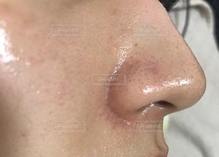 いちご鼻の写真・画像素材[2231099]