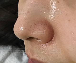いちご鼻の写真・画像素材[2231100]