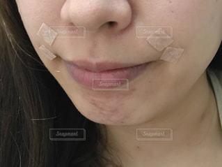 美容鍼の写真・画像素材[2247617]