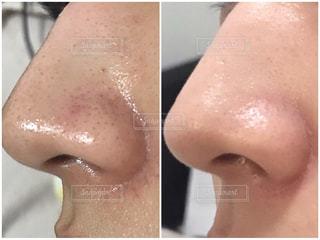 いちご鼻 改善の写真・画像素材[2250037]
