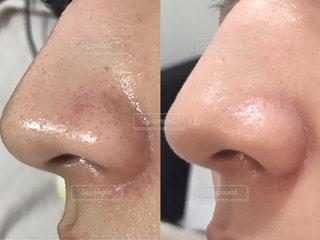 いちご鼻 改善の写真・画像素材[2250038]