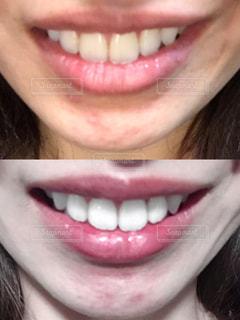 歯のホワイトニングの写真・画像素材[2261250]