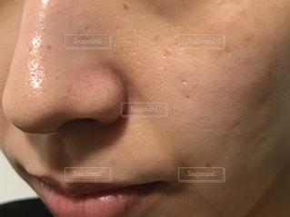 毛穴が目立つ肌の写真・画像素材[2285801]
