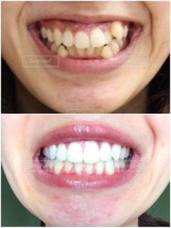 歯列矯正とホワイトニング ビフォアフターの写真・画像素材[2391599]