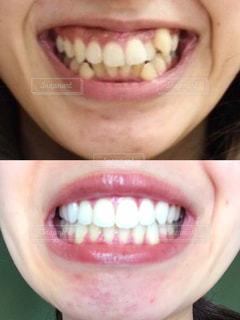 歯科矯正の写真・画像素材[2391600]