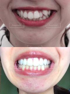 歯科矯正の写真・画像素材[2391634]