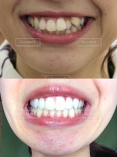 歯科矯正の写真・画像素材[2391635]