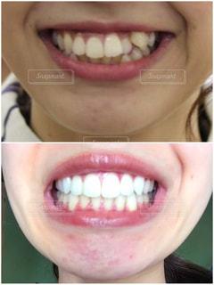 歯科矯正の写真・画像素材[2391636]