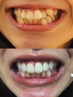 歯科矯正ビフォアフターの写真・画像素材[2403248]