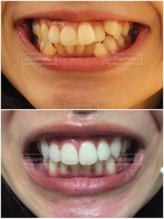 歯科矯正の写真・画像素材[2403249]