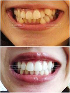 歯科矯正とホワイトニングの写真・画像素材[2403250]