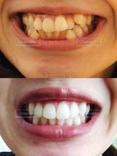 歯科矯正の写真・画像素材[2403252]