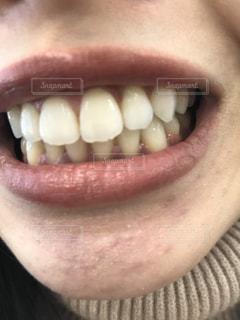 女性の口元の写真・画像素材[2810040]