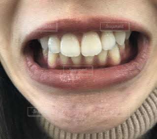 女性の口元の写真・画像素材[2810042]