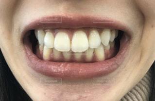 女性の口元の写真・画像素材[2810039]
