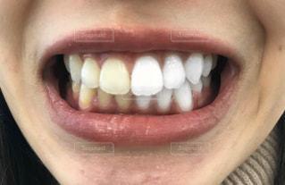女性の口元の写真・画像素材[2836803]